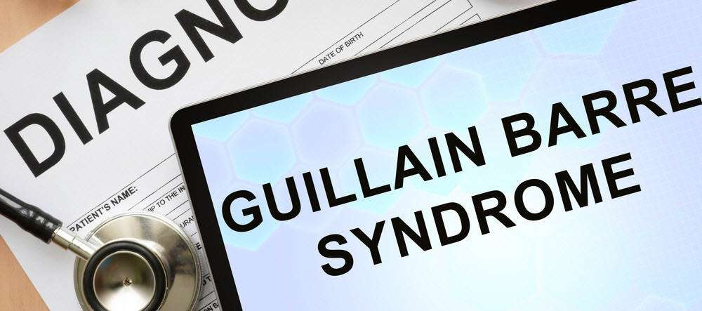 30 Cases of Guillain Barre Syndrome